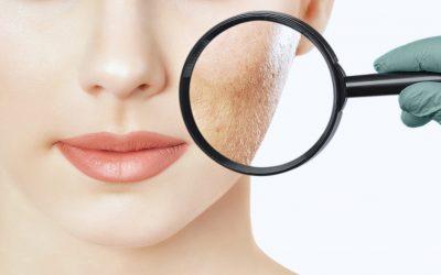 Ästhetische und Kosmetische Dermatologie