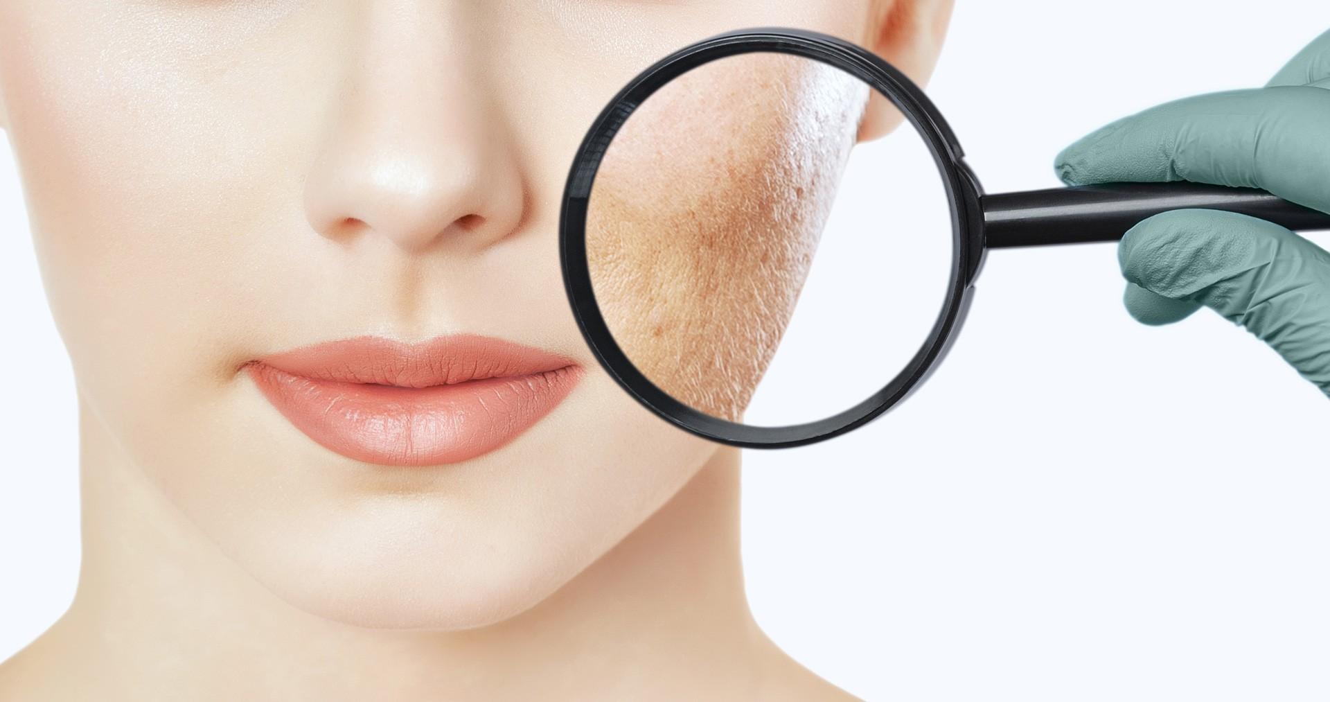 Untersuchung Haut