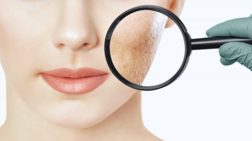 Hautgesundheit Lupe